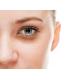 Терапия темных кругов вокруг глаз